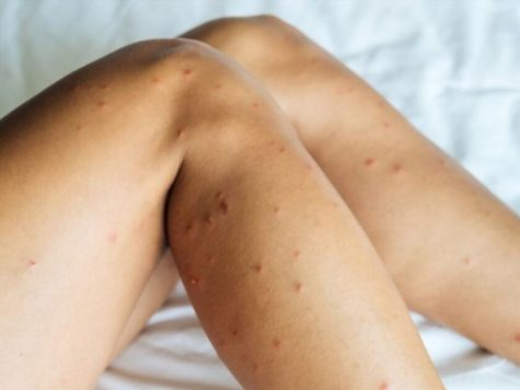 bed bug biting one person